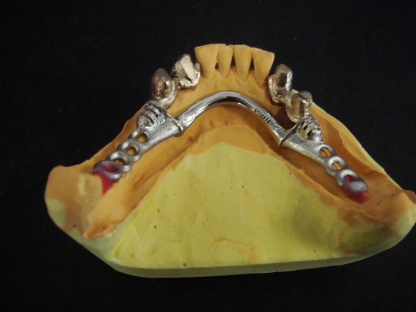 Οδοντοτεχνικό Εργαστήριο - Παπαλέξης Ελευθέριος - Εργαστήριο Κινητής ... 5a41ac50510